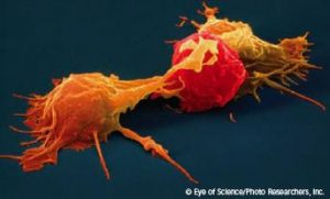 The Cancer Cure: Natural Killer Cells (NKC)